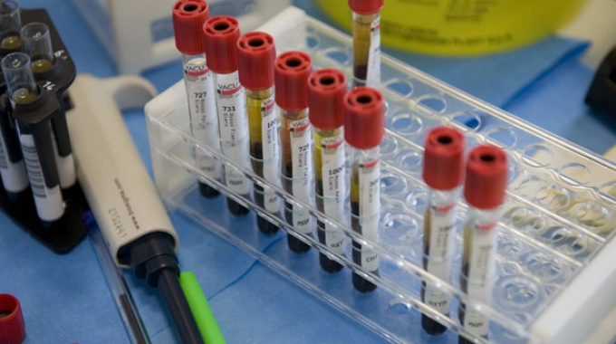 Digiunare prima dell'esame del sangue