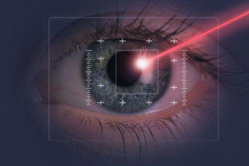 Intervento laser agli occhi