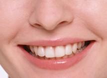 Acqua ossigenata per i denti, fa male?