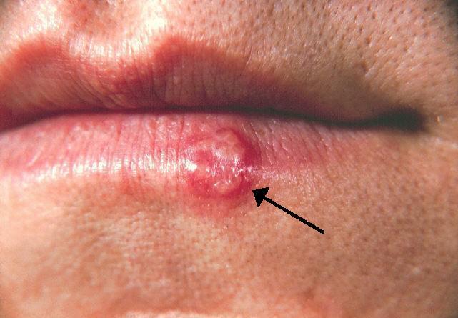5 rimedi contro herpes labiale