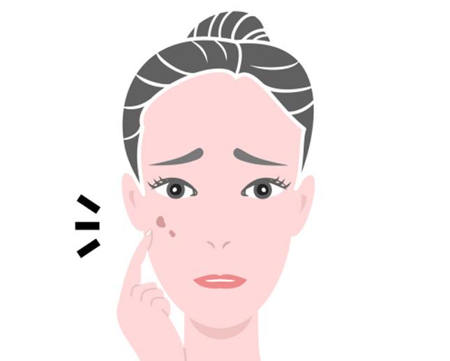 Sintomi della dermatillomania