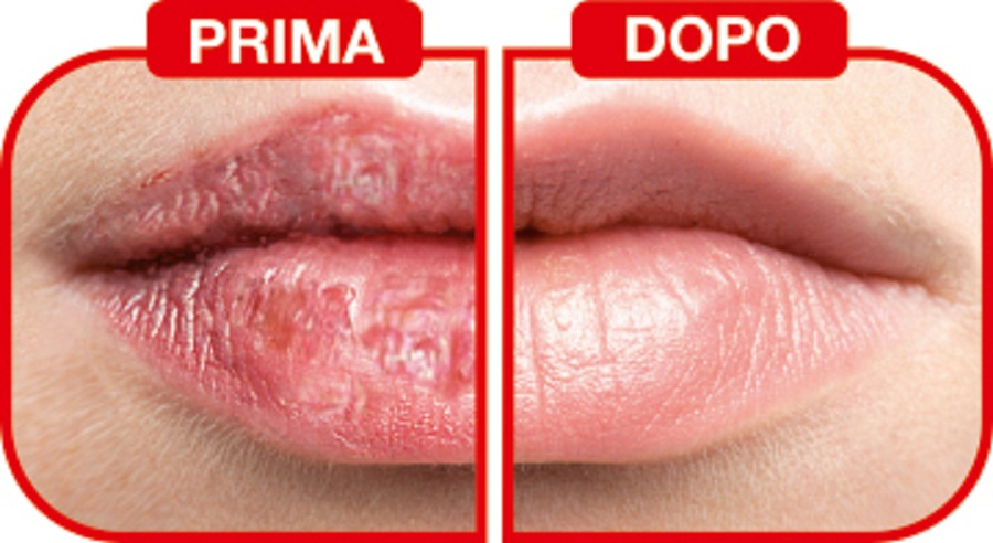 Rimedi naturali per labbra carnose senza trucco
