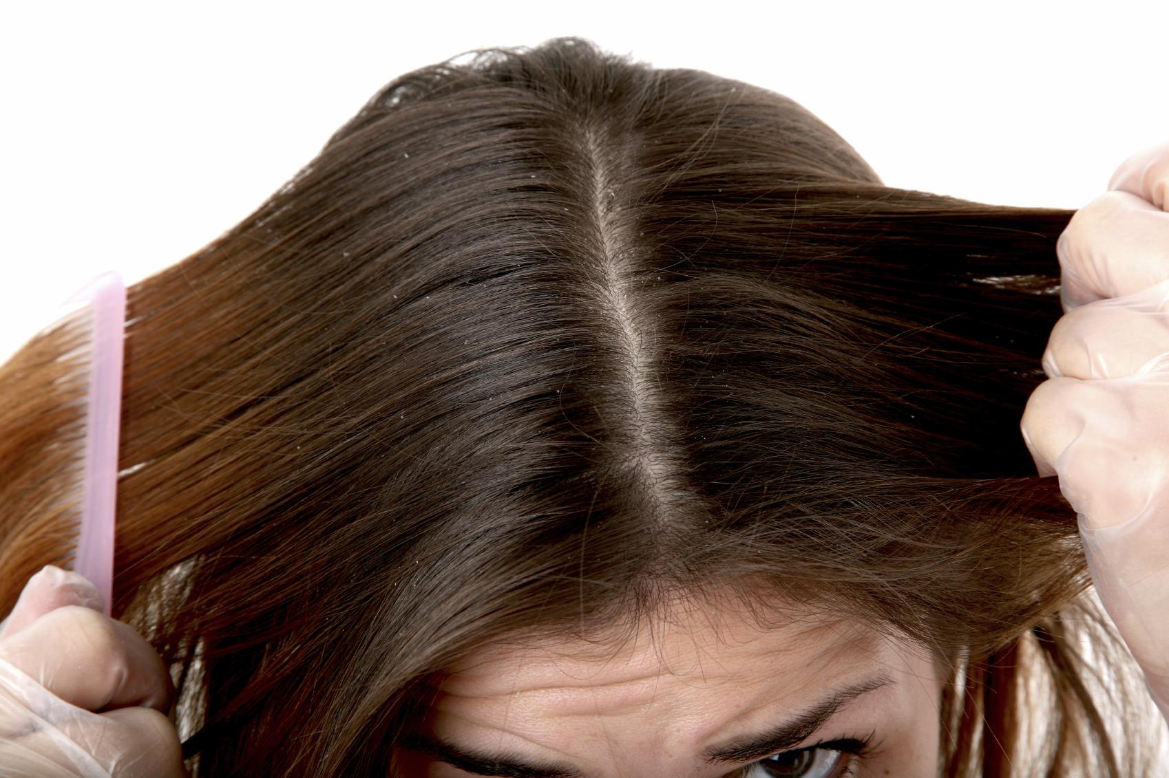 Cure per capelli con forfora