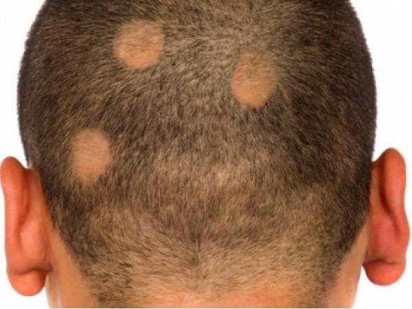 Come curare alopecia da stress