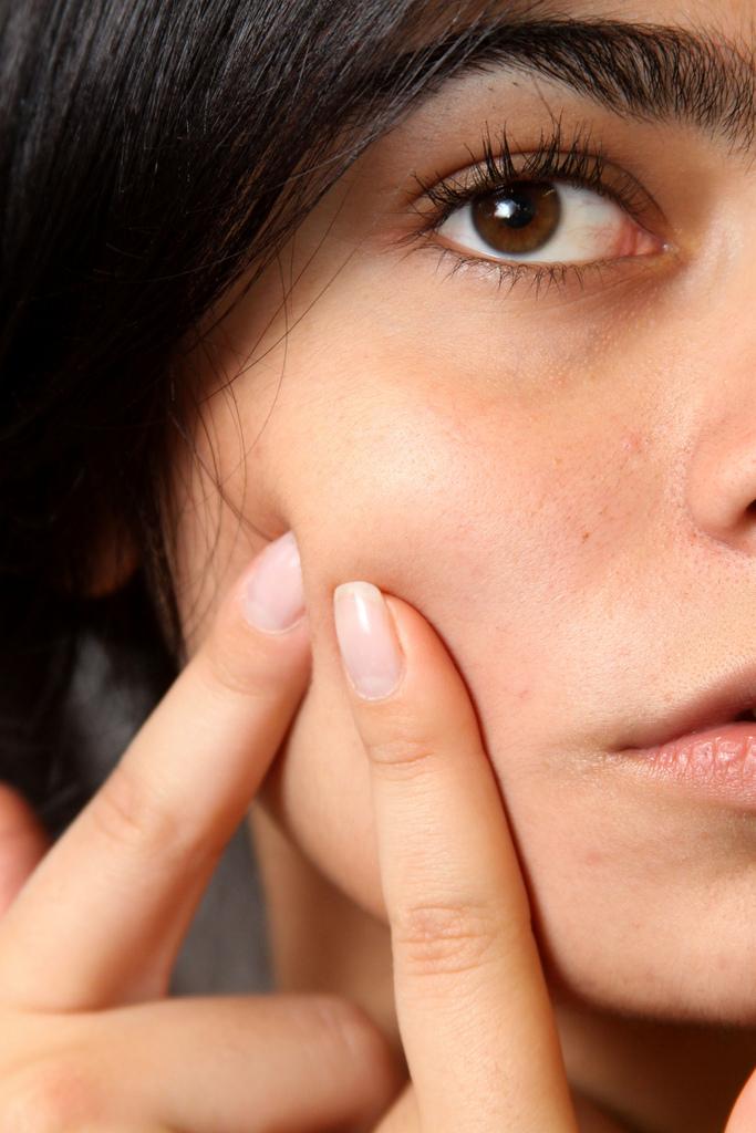 Dopo quanto tempo funziona pillola Fedra per acne