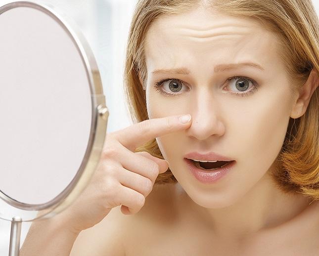 Come restringere pori dilatati del viso