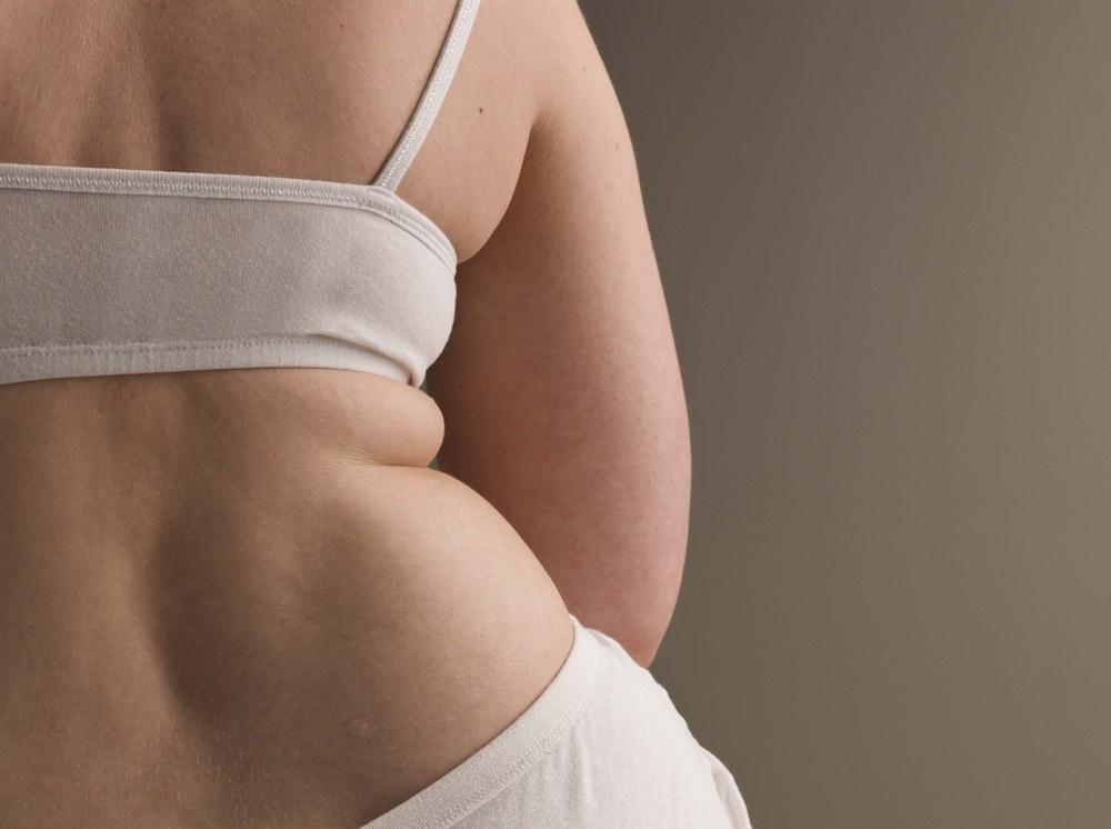 Fat-shaming: le testimonianze delle vittime