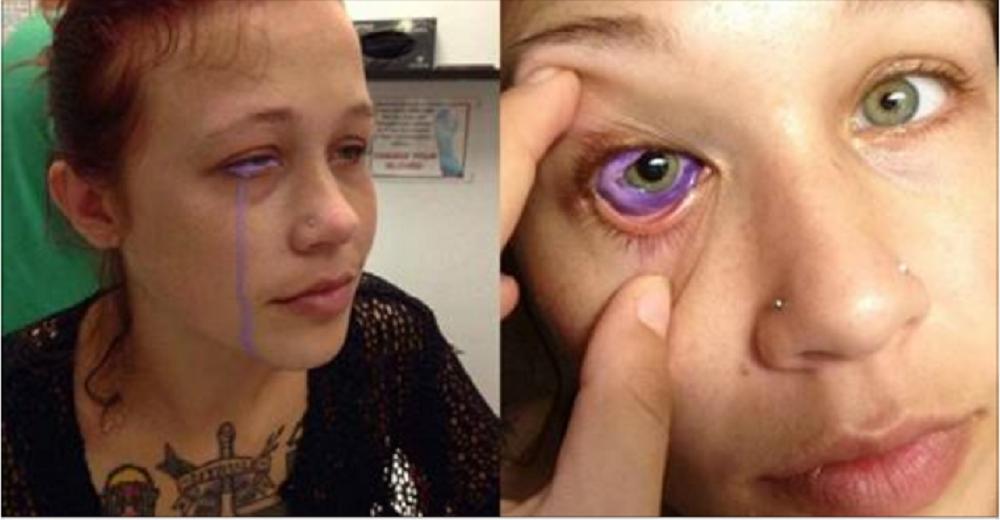 Modella rischia di diventare cieca per tatuaggio oculare