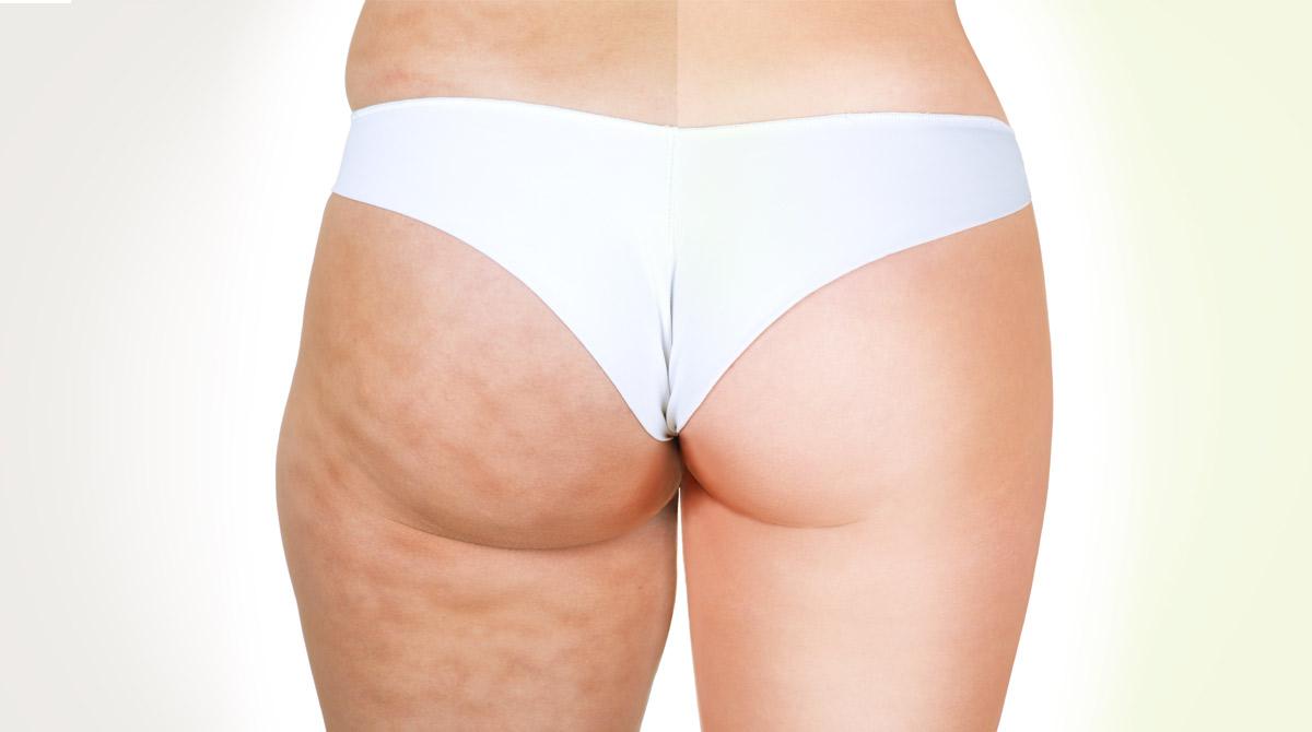 Come Eliminare La Cellulite Alle Gambe Naturalmente E Velocemente
