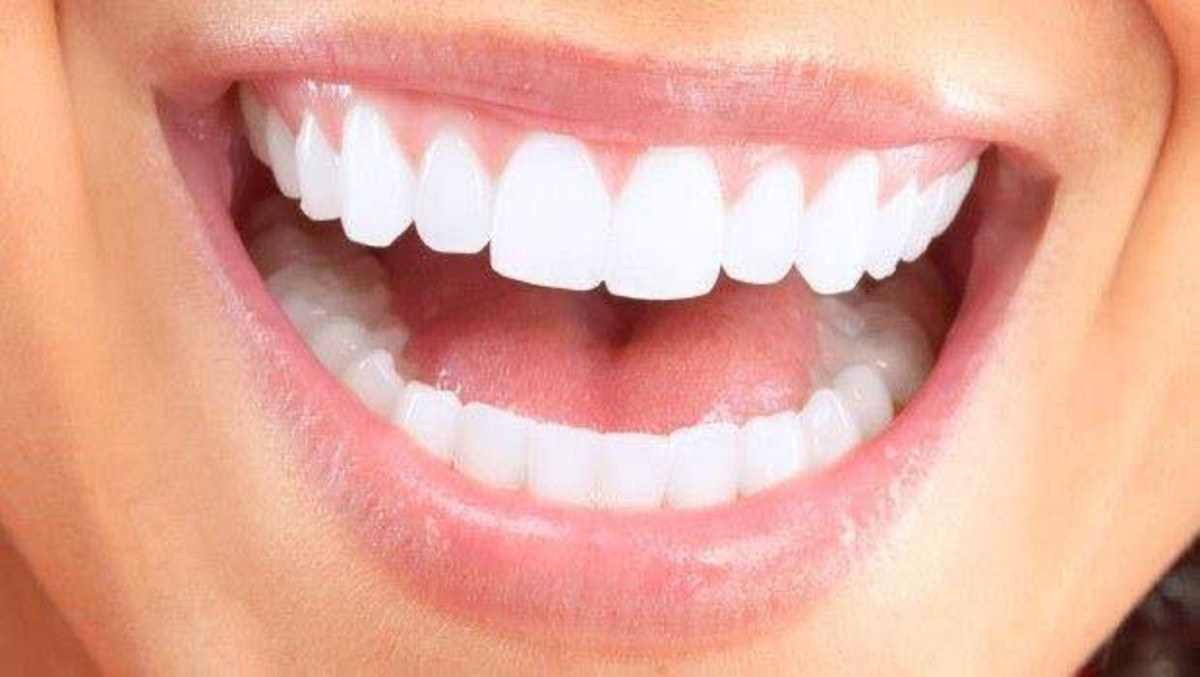 come sbiancare i denti a casa
