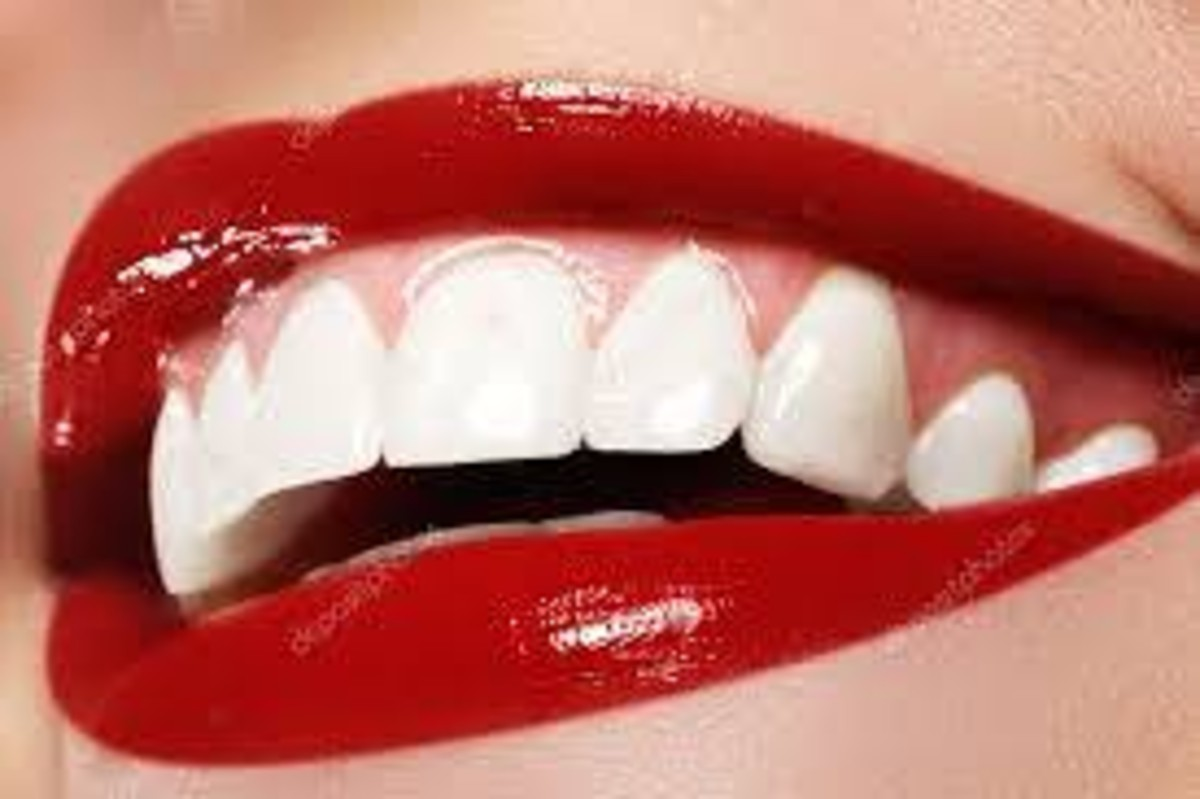 denti macchiati dal fumo