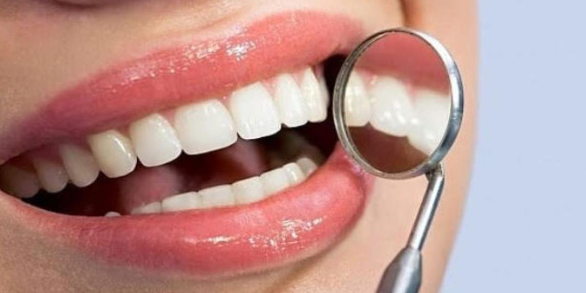 sbiancare denti con acqua ossigenata