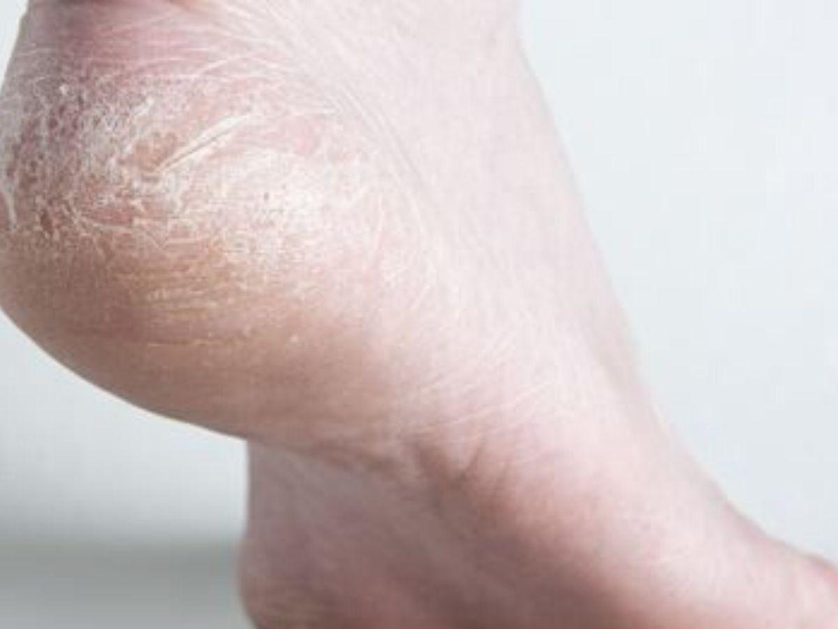 piedi secchi