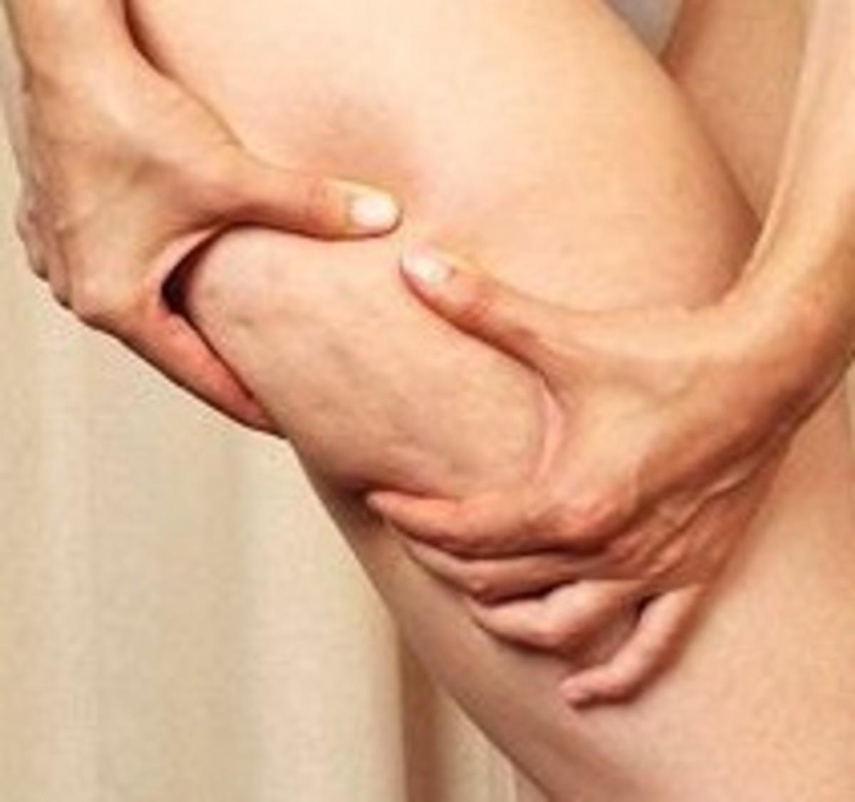 cellulite edematosa