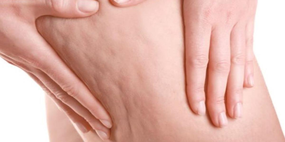 come eliminare la cellulite a casa