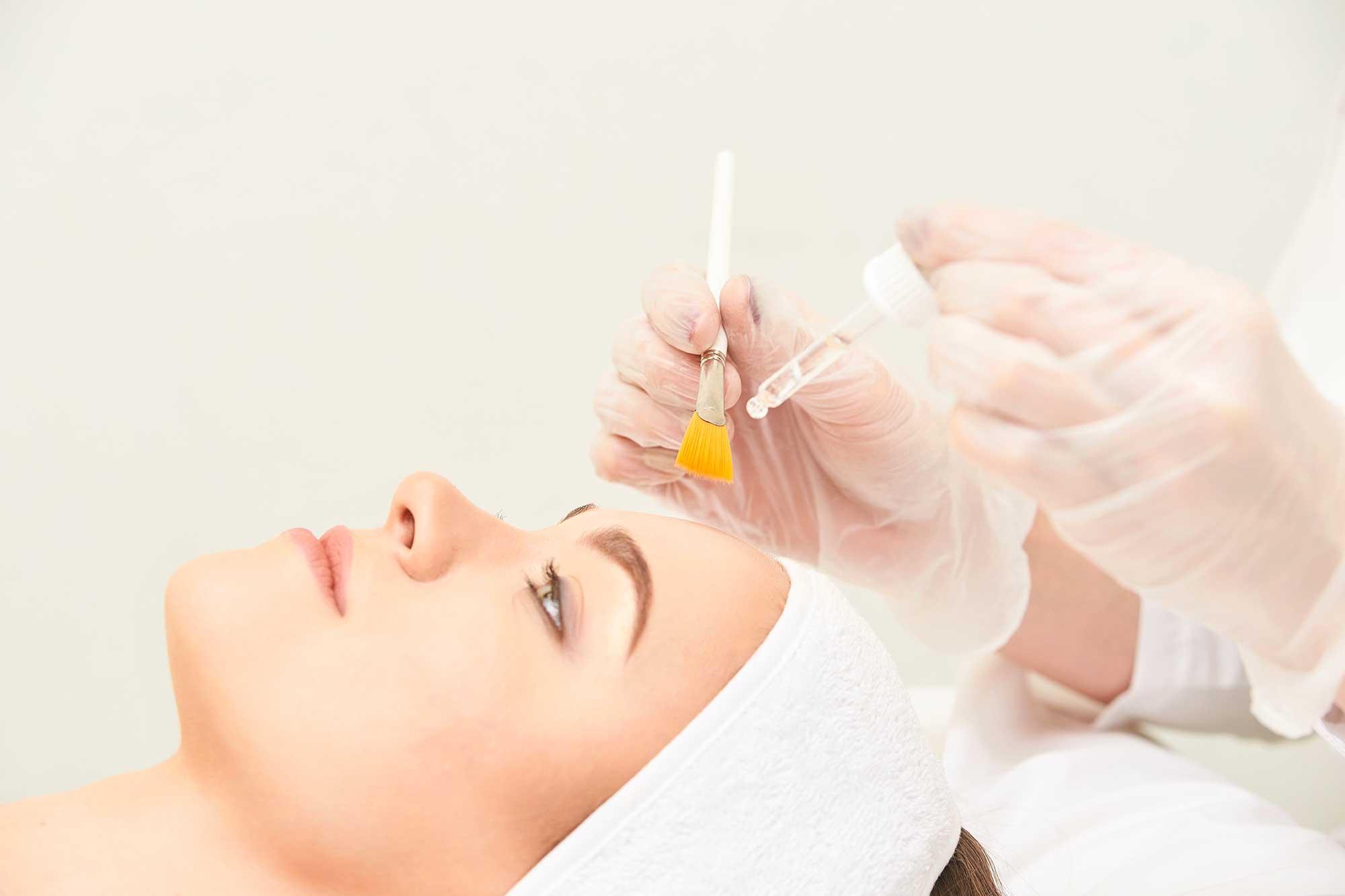 Come eliminare cicatrici acne