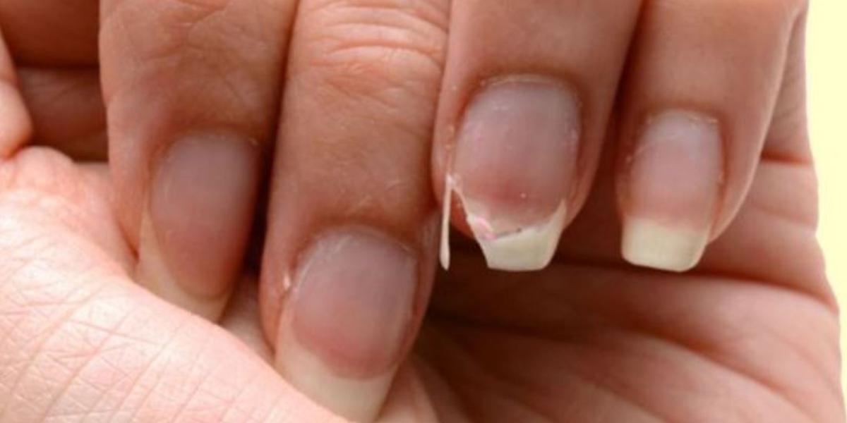 come fare crescere le unghie velocemente