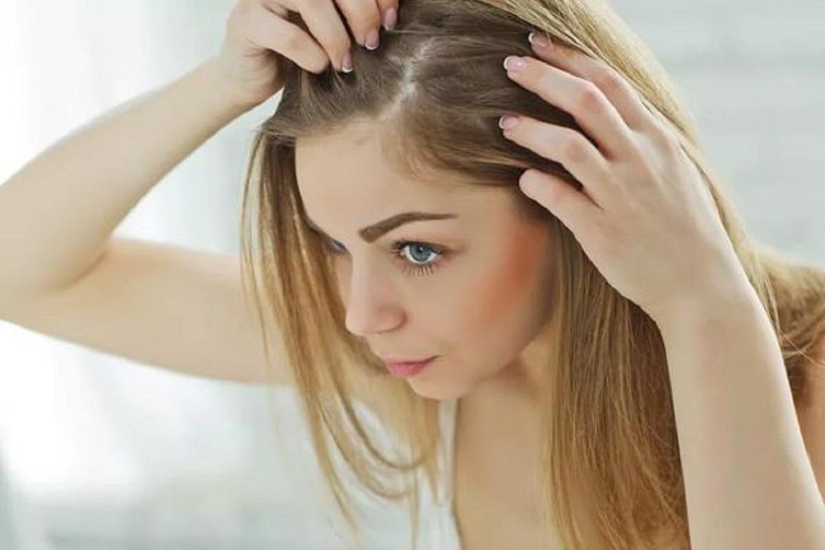 shampoo antiforfora migliore