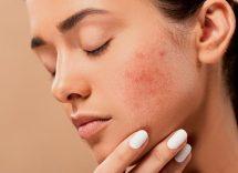 pelle impura prodotti