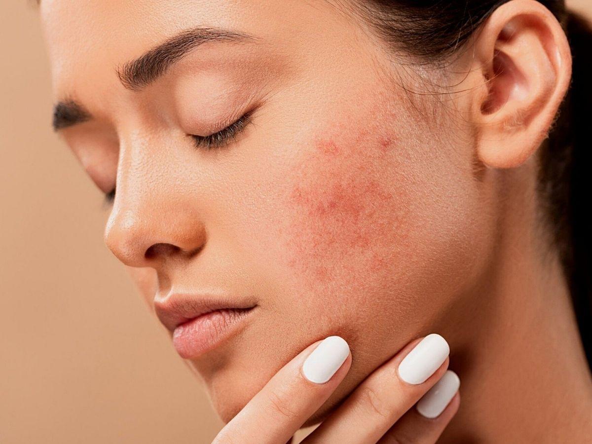 Come combattere l'acne sul viso