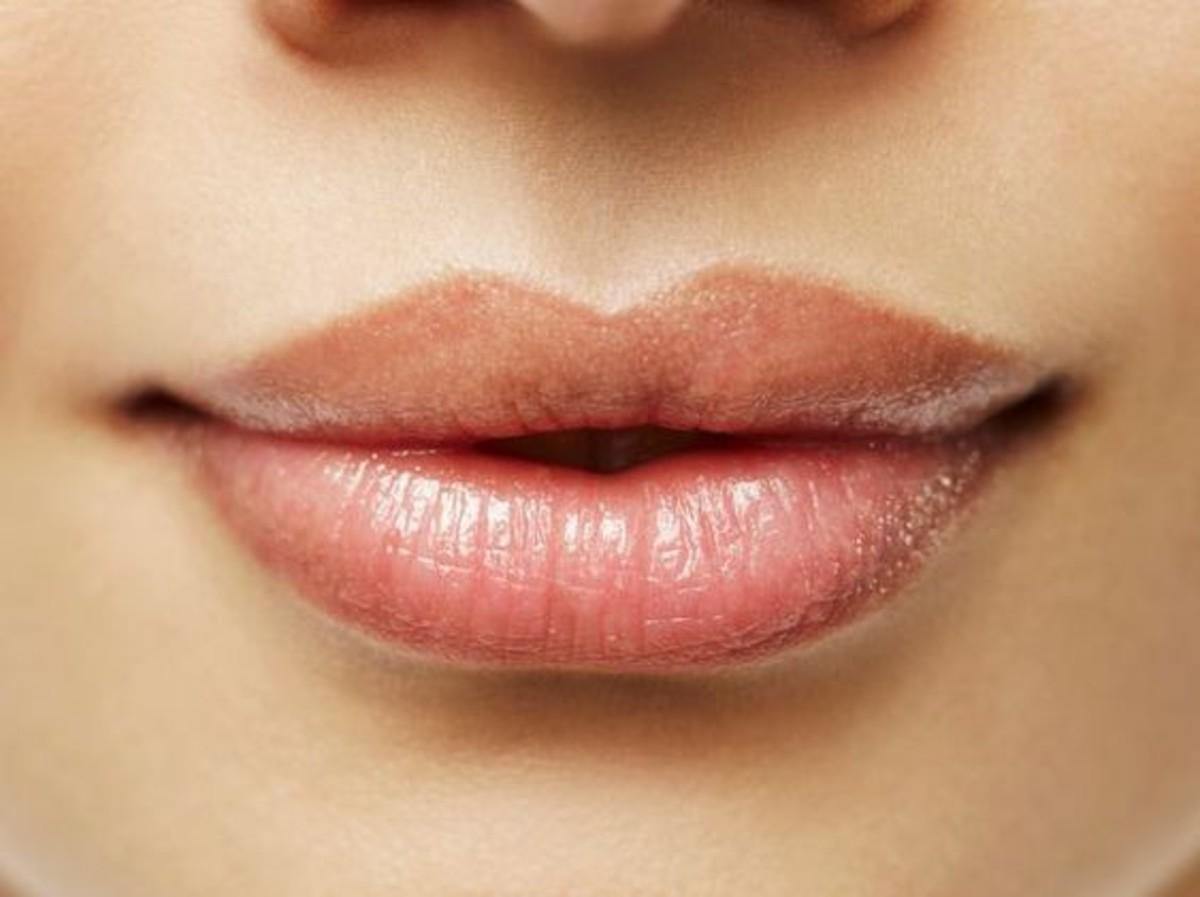 labbra carnose senza filler