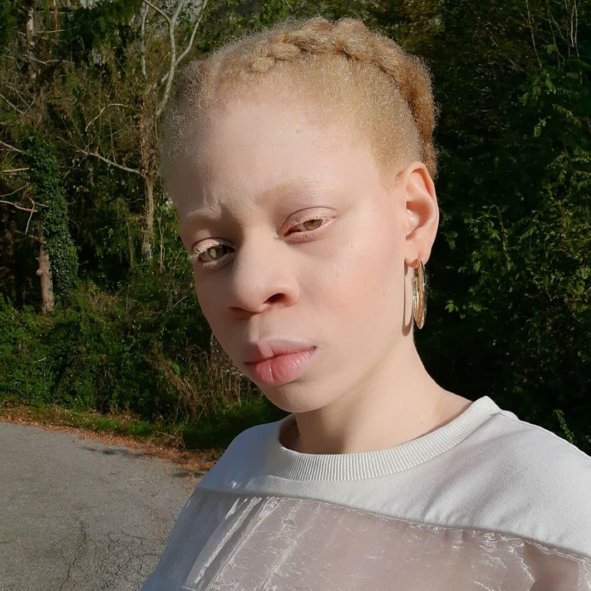 oxana modella albina chi e