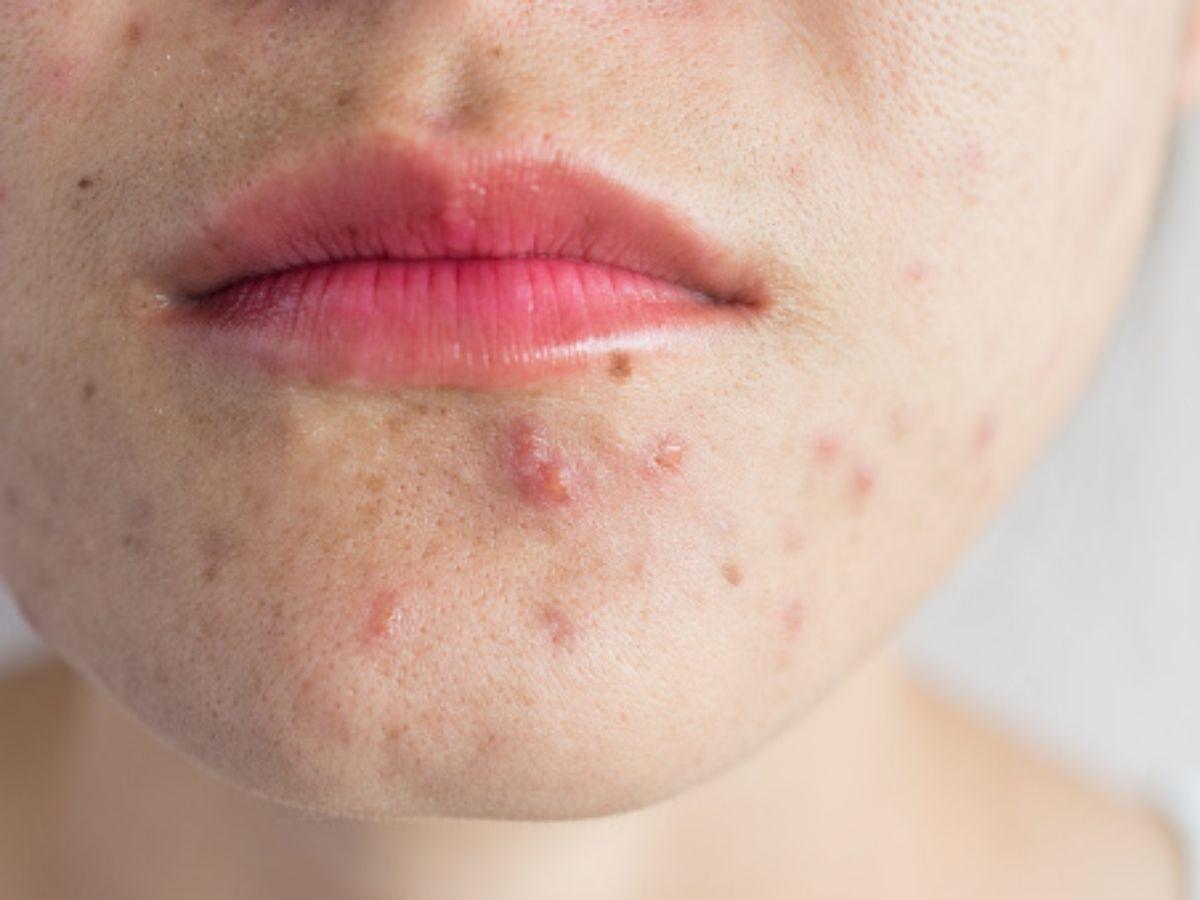 come combattere acne sul viso a tavola