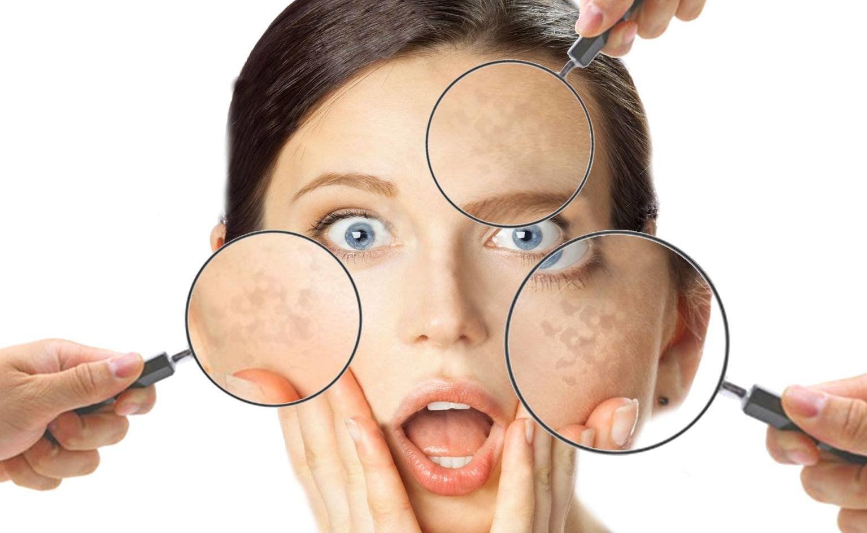 come prevenire macchie della pelle