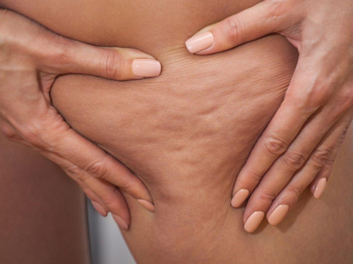 come si manifesta la cellulite