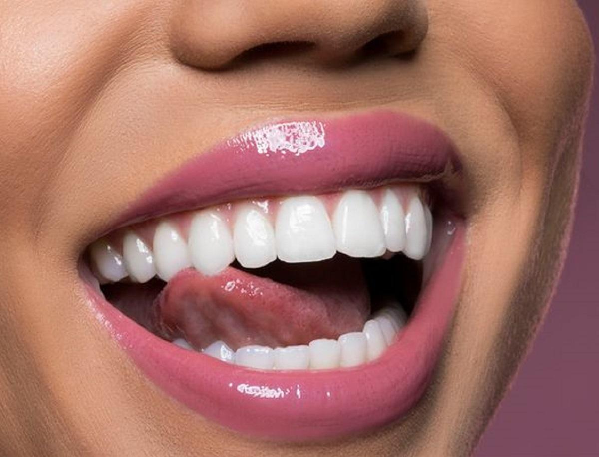 igiene orale perfetta consigli