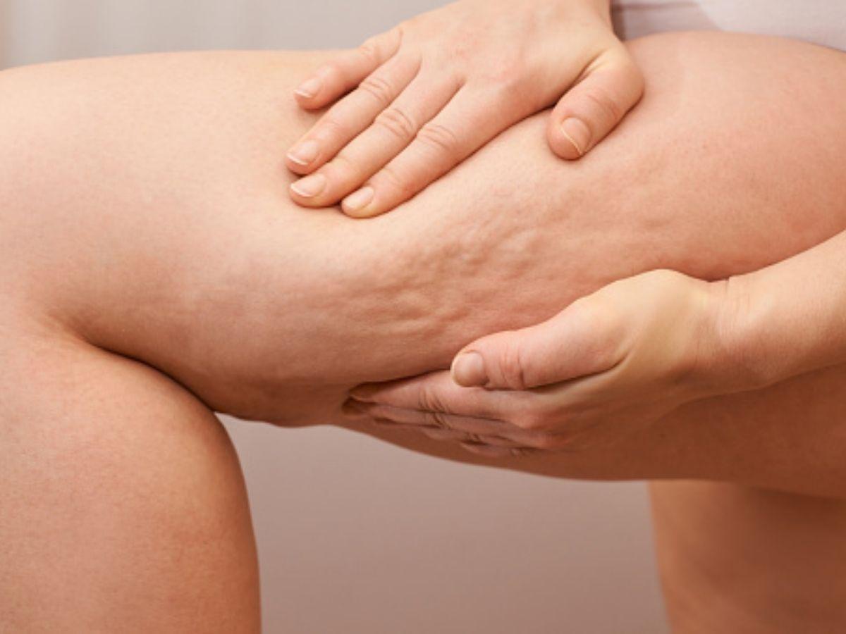 rimedi naturali contro cellulite e ritenzione idrica