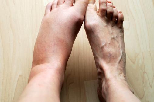 massaggiatore gambe come funziona