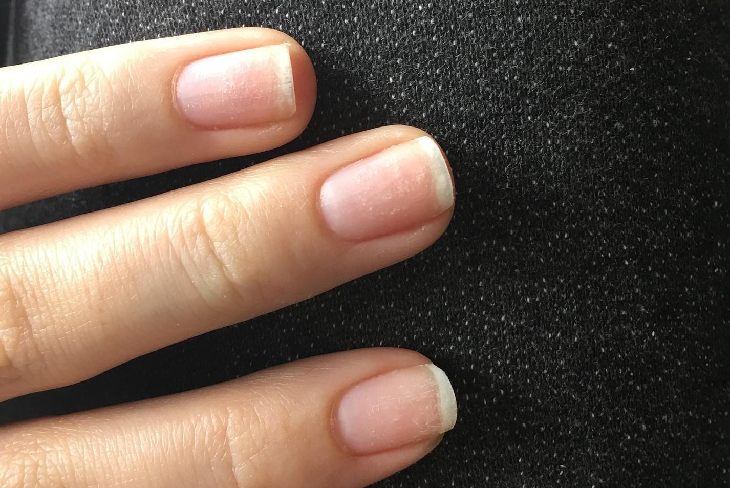 Migliori rinforzanti unghie