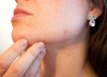 acne in età adulta rimedi