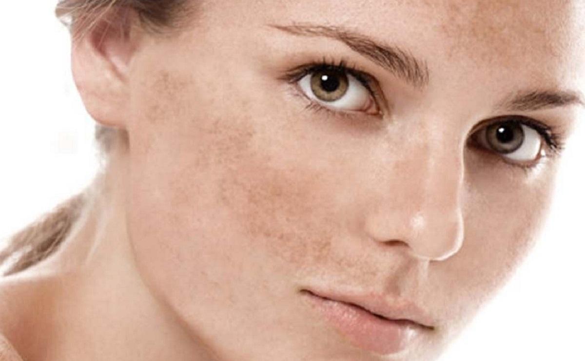 Crema schiarente antimacchie viso